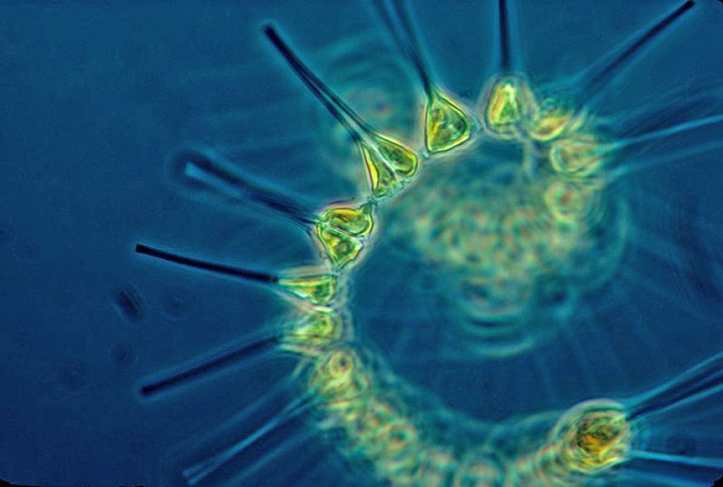Phytoplankton. Photo: Forskning.no
